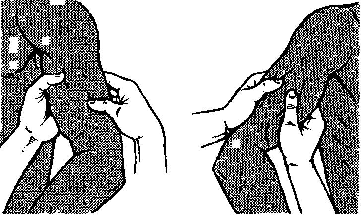 Продольное разминание плеча